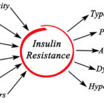 Insulin Resistance and PCOS; What You Need to Know