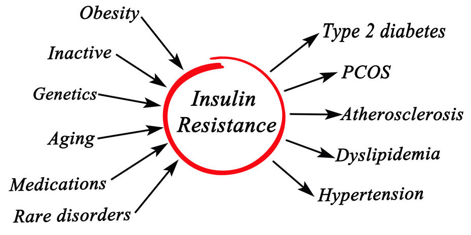 insulin resistance and PCOS
